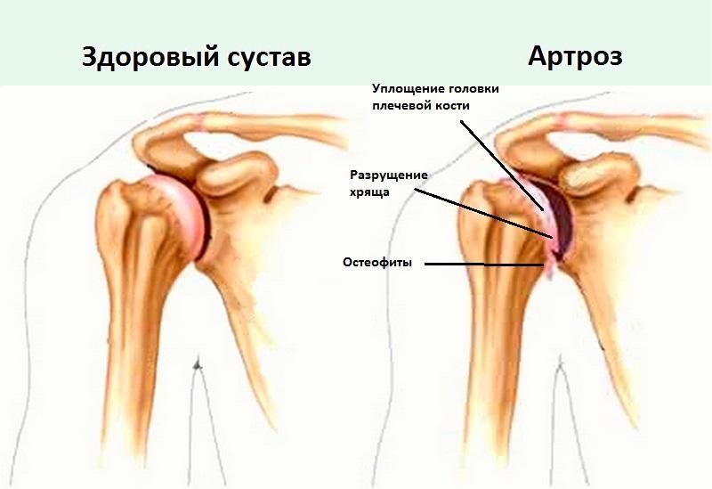 разрушение сустава пальца