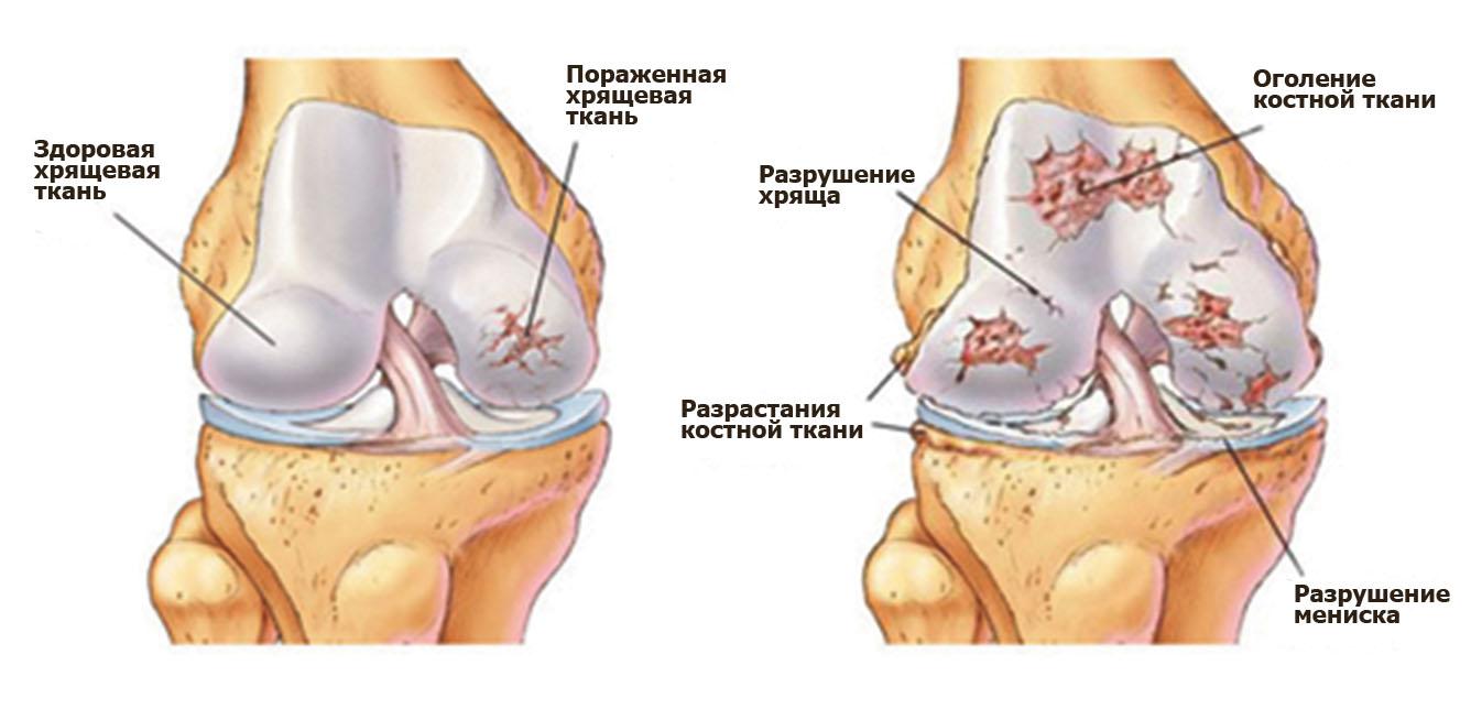 варусная деформация голеностопного сустава лечение