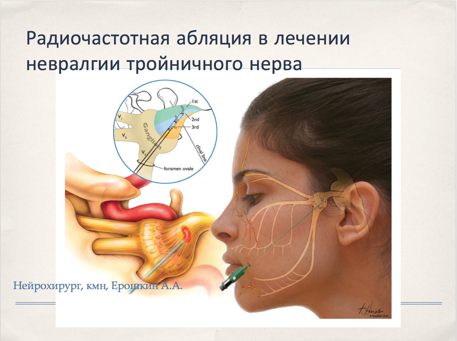 Тройничный нерв лечение при беременность