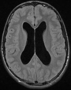 hidr_MRI