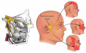 simptomy-nevralgii-litsevogo-nerva-foto