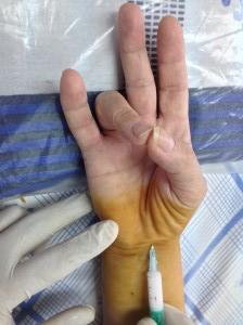 sindrom-karpalnogo-kanala-03
