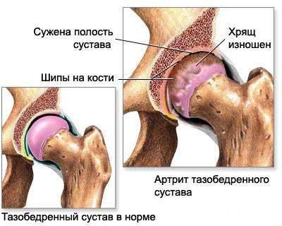 Хруст в таобедренном суставе физкультура при повреждениях коленного сустава