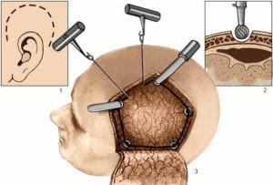 трепанация-черепа-300x203