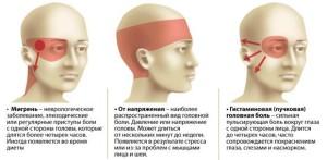 vidy-golovnoy-boli