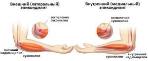 vidy-loktevogo-epikondilita